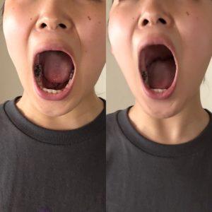 口も喉も施術で大きく開くようになるんです。